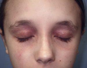 dermatite de contato em face devido a alergia a esmalte